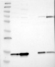 NBP1-86024 - HINT2