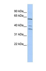 NBP1-57277 - AGFG1 / HRB