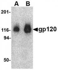 NBP1-76371 - HIV-1