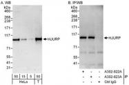 NBP1-47287 - HJURP