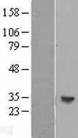 NBL1-11582 - HLA DOB Lysate