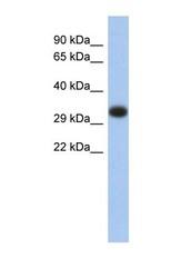 NBP1-59051 - HLA class II DP alpha chain / HLA-DPA1