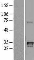 NBL1-11584 - HLA DQA1 Lysate