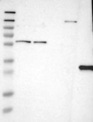 NBP1-84549 - HLA class II DQ beta 1 / HLA-DQB1