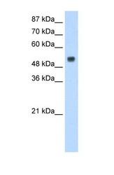 NBP1-57247 - RBM45