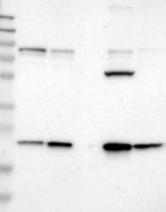 NBP1-81759 - Biotin-protein ligase / HLCS