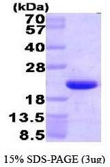 NBP1-41146 - HMGN1