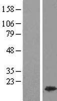 NBL1-11612 - HMGA1 Lysate