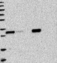 NBP1-88768 - HMGCLL1