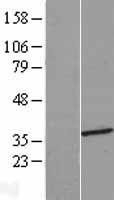 NBL1-11618 - HMGCLL1 Lysate