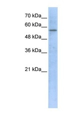 NBP1-54623 - HMG-CoA synthase / HMGCS