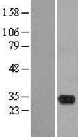 NBL1-11627 - HMX2 Lysate