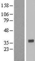 NBL1-11633 - HNMT Lysate