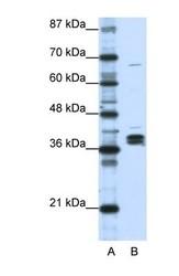 NBP1-57156 - hnRPD-like protein / HNRPDL
