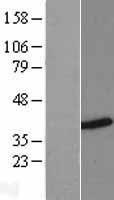 NBL1-11644 - HNRPH3 Lysate
