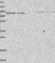 NBP1-81743 - HOOK3