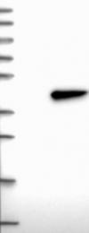 NBP1-82724 - HORMAD2