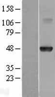 NBL1-11664 - HOXA10 Lysate