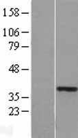 NBL1-11665 - HOXA11 Lysate