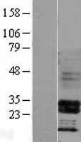 NBL1-11671 - HOXB4 Lysate