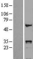 NBL1-11672 - HOXB5 Lysate
