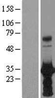 NBL1-11673 - HOXB6 Lysate