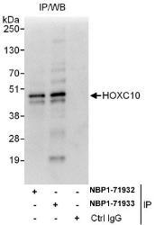 NBP1-71932 - HOXC10 / HOX3I
