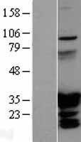 NBL1-11678 - HOXC6 Lysate