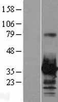 NBL1-11680 - HOXC8 Lysate
