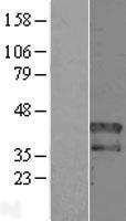 NBL1-11681 - HOXD1 Lysate