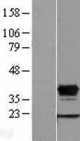 NBL1-11684 - HOXD8 Lysate