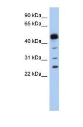 NBP1-54625 - PGD synthetase / PGDS