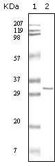 NBP1-47358 - HPRT1 / HPRT