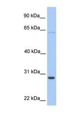 NBP1-52903 - HPRT1 / HPRT