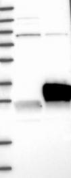 NBP1-92006 - HPRT1 / HPRT
