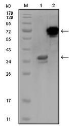 NBP1-47517 - HPS1