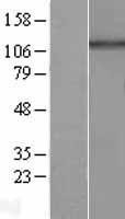 NBL1-11699 - HPS5 Lysate