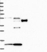 NBP1-92009 - TRMT112
