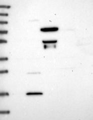 NBP1-93691 - Heparanase-2 / HPA2