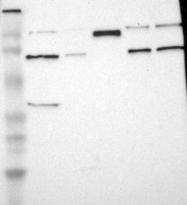 NBP1-81208 - HRC / HCP