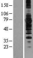 NBL1-16660 - SYVN1 Lysate