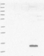 NBP1-82453 - Ribonuclease UK114 / HRSP12