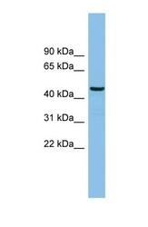 NBP1-57747 - HS1BP3