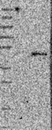 NBP1-89375 - HS3ST1 / 3OST