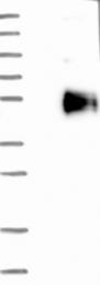 NBP1-89373 - HS3ST5 / 3OST5