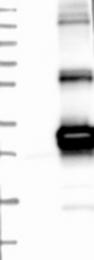 NBP1-84066 - HSCB / DNAJC20 / HSC20