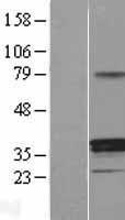 NBL1-11718 - HSD11B1 Lysate