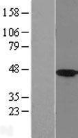 NBL1-11721 - HSD11B2 Lysate