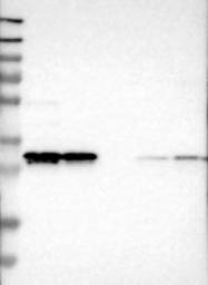 NBP1-81567 - 17-beta-HSD12 / HSD17B12