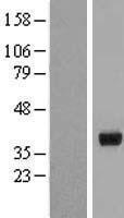 NBL1-11726 - HSD17B2 Lysate